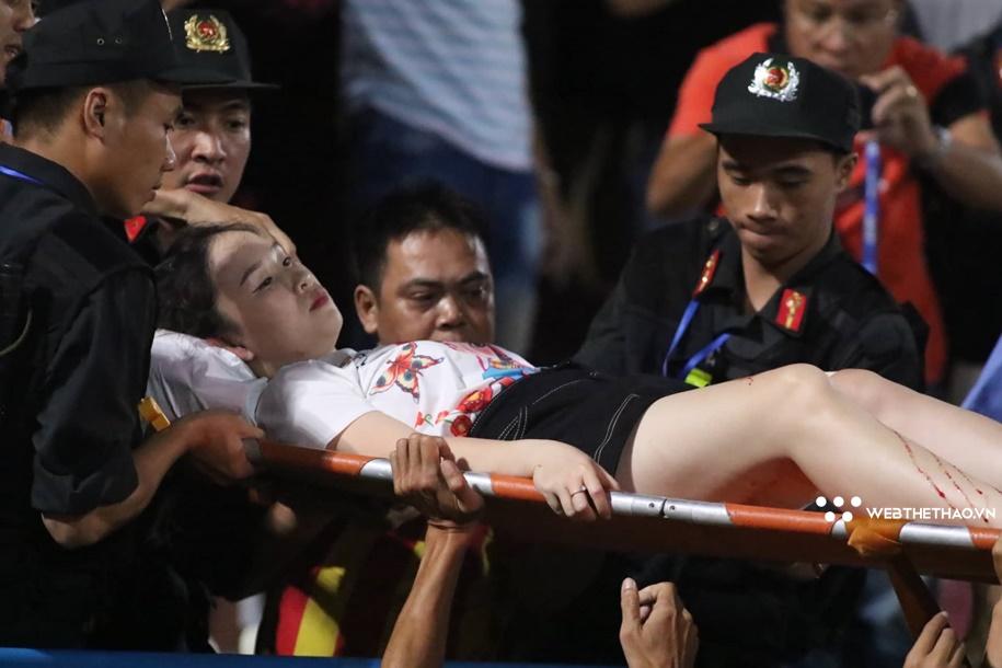 Một CĐV bị thương do pháo sáng ở trận Hà Nội vs Nam Định mùa trước.