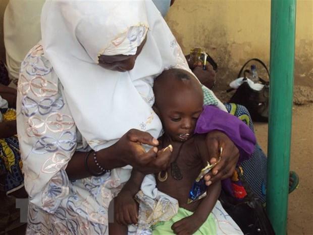 Trẻ em suy dinh dưỡng tại thành phố Gombe, Nigeria. Ảnh: AFP/TTXVN