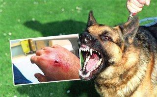 Xử lý vết thương khi bị con vật nghi dại cắn