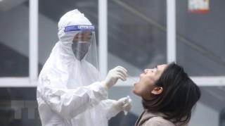 Việt Nam ghi nhận thêm 2 ca lây nhiễm trong cộng đồng tại Hà Nội